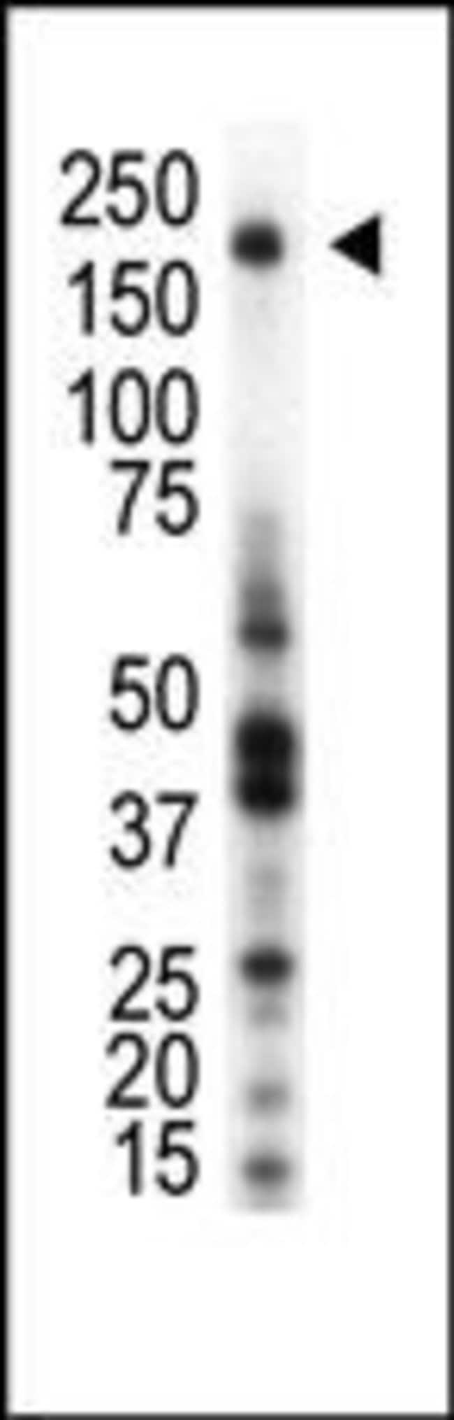 RON Rabbit anti-Human, Polyclonal, Invitrogen 400 µL; Unconjugated