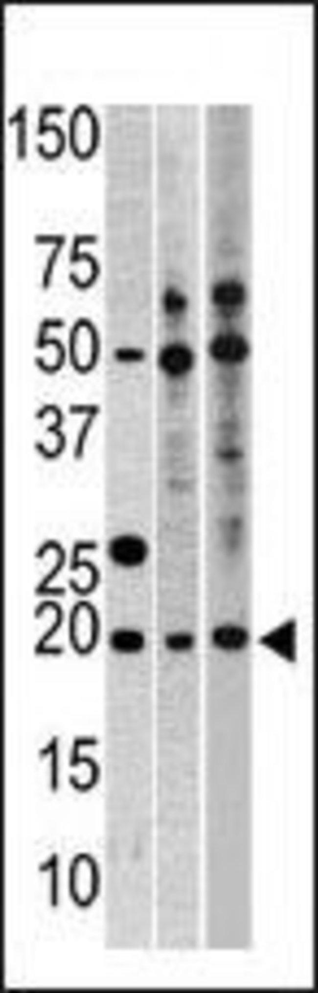 RPL23A Rabbit anti-Human, Polyclonal, Invitrogen 400 µL; Unconjugated