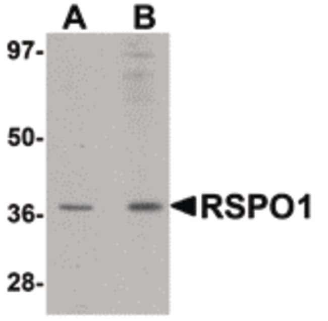 RSPO1 Rabbit anti-Human, Mouse, Rat, Polyclonal, Invitrogen 100 µg;