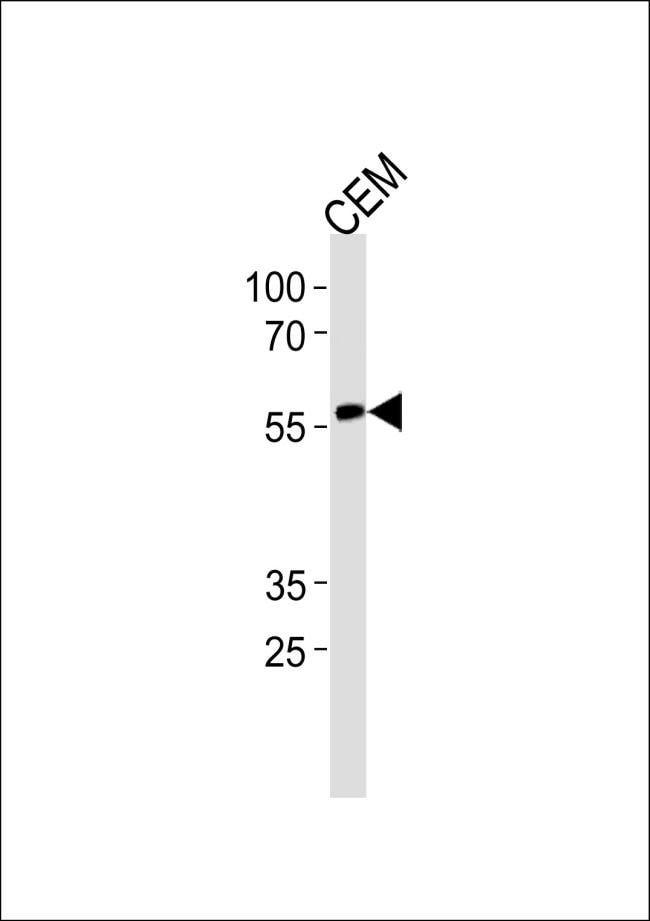 RUNX2 Rabbit anti-Human, Polyclonal, Invitrogen 400 µL; Unconjugated