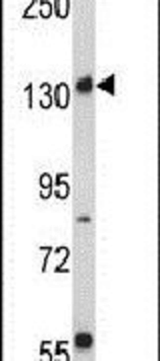 RICTOR Rabbit anti-Human, Polyclonal, Invitrogen 400 µL; Unconjugated
