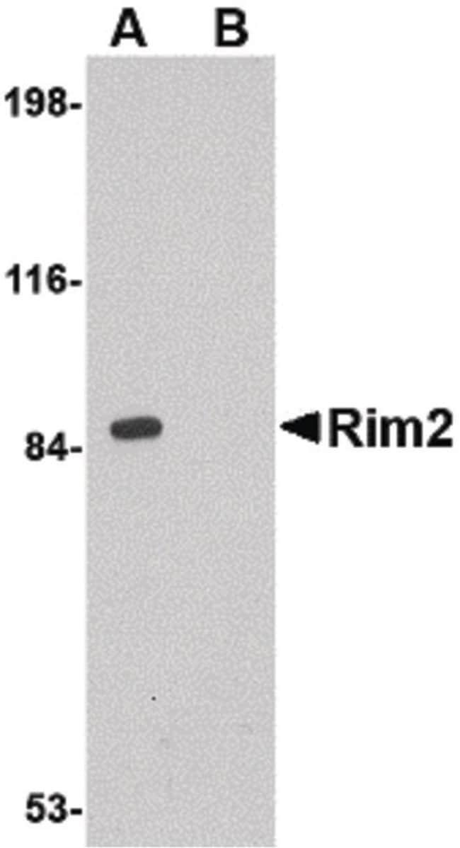 RIM2 Rabbit anti-Human, Mouse, Rat, Polyclonal, Invitrogen 100 µg;