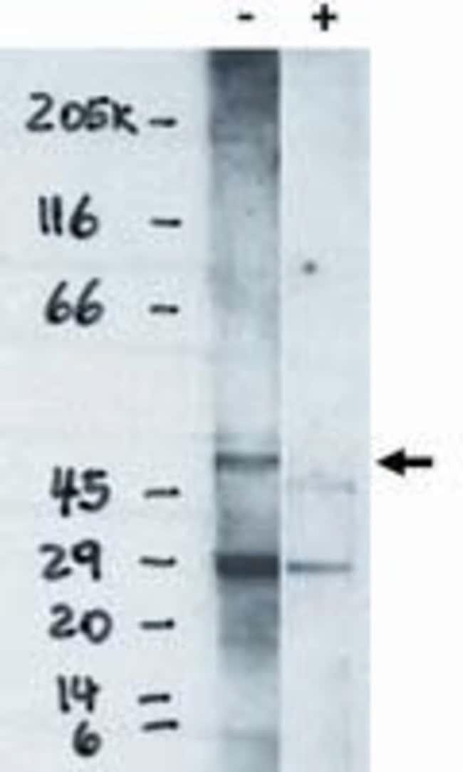 EDG6 Rabbit anti-Human, Polyclonal, Invitrogen 100 µg; Unconjugated
