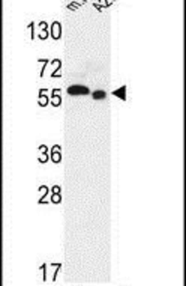 SLC47A2 Rabbit anti-Human, Mouse, Polyclonal, Invitrogen 400 µL; Unconjugated