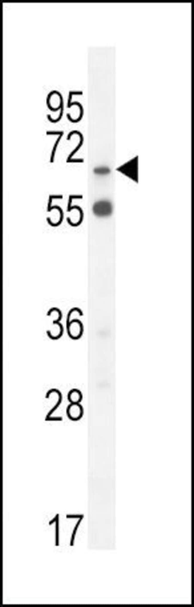 SLC6A12 Rabbit anti-Human, Polyclonal, Invitrogen 400 µL; Unconjugated