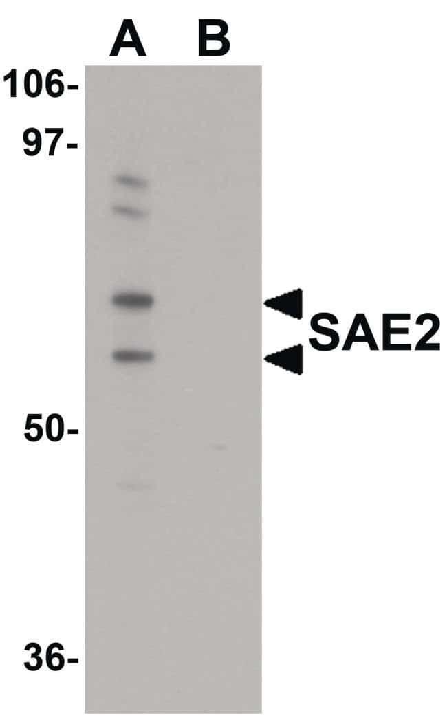 UBA2 Rabbit anti-Human, Polyclonal, Invitrogen 100 µg; Unconjugated