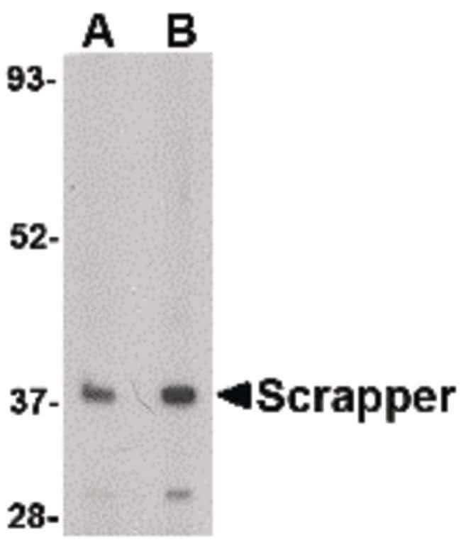 FBXL20 Rabbit anti-Human, Mouse, Rat, Polyclonal, Invitrogen 100 µg;