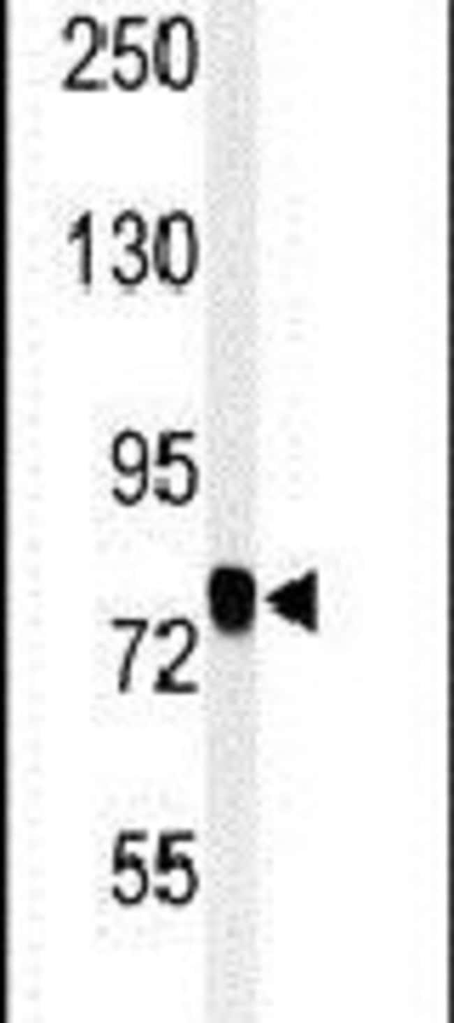SEMA3C Rabbit anti-Human, Mouse, Polyclonal, Invitrogen 400 µL; Unconjugated