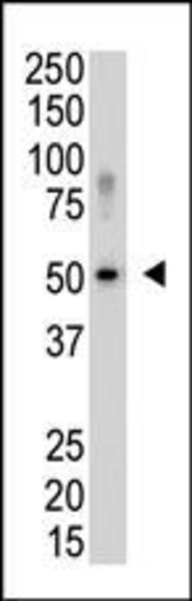 SENP5 Rabbit anti-Human, Polyclonal, Invitrogen 400 µL; Unconjugated