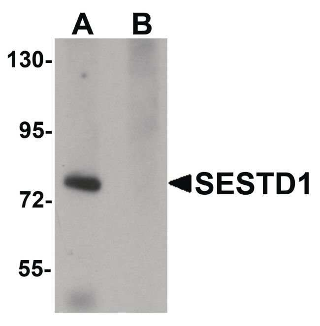 SESTD1 Rabbit anti-Human, Mouse, Rat, Polyclonal, Invitrogen 100 µg;