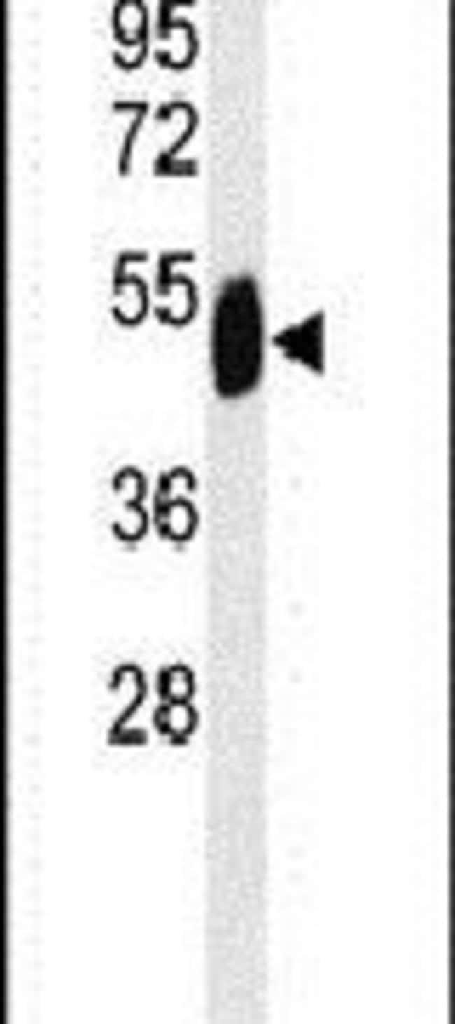 SETD6 Rabbit anti-Human, Polyclonal, Invitrogen 400 µL; Unconjugated