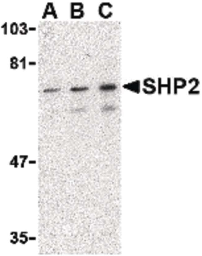 SHP2 Rabbit anti-Human, Mouse, Rat, Polyclonal, Invitrogen 100 µg;