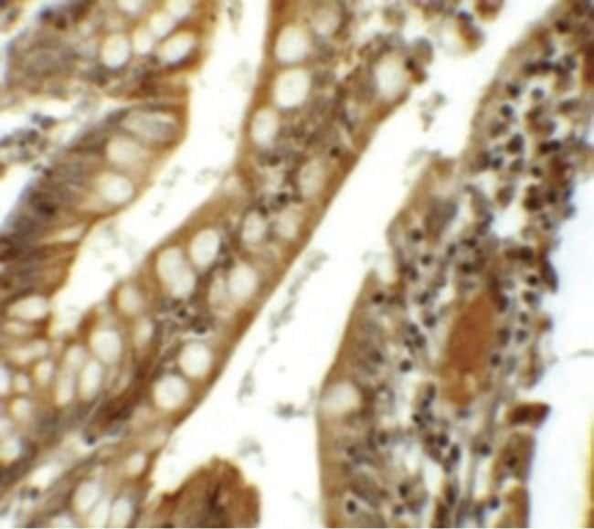 SIK1 Rabbit anti-Human, Polyclonal, Invitrogen 100 µg; Unconjugated