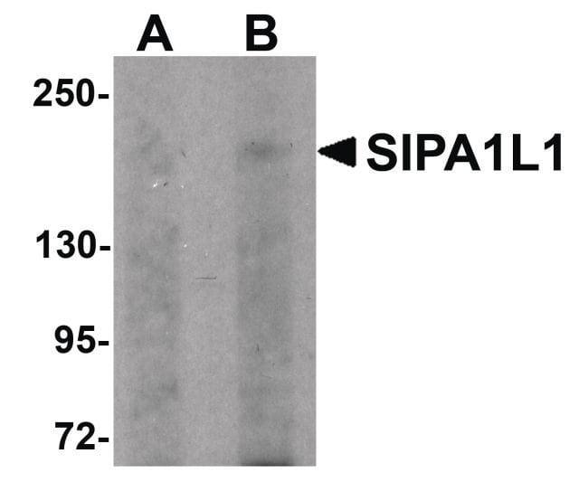 SIPA1L1 Rabbit anti-Human, Mouse, Rat, Polyclonal, Invitrogen 100 µg;