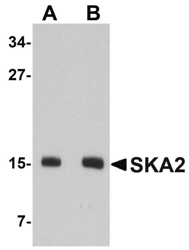 SKA2 Rabbit anti-Human, Mouse, Polyclonal, Invitrogen 100 µg; Unconjugated