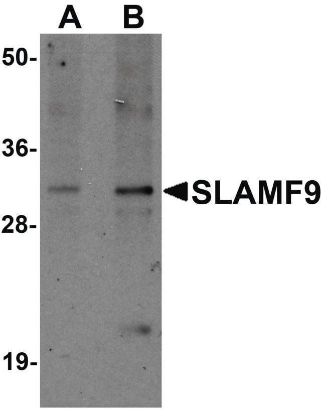 SLAMF9 Rabbit anti-Human, Mouse, Rat, Polyclonal, Invitrogen 100 µg;