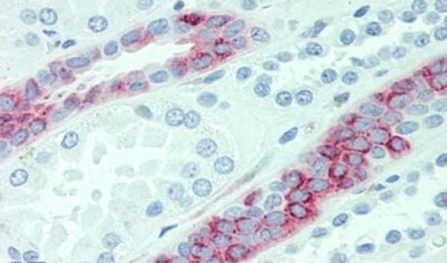 SLC4A2 Rabbit anti-Human, Polyclonal, Invitrogen™ 50 μg; Unconjugated Primary Antibodies Sh to Sm