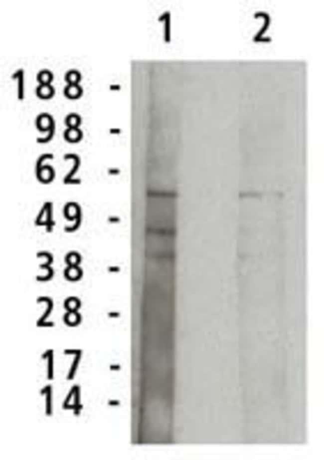 ASM Rabbit anti-Human, Polyclonal, Invitrogen 100 μg; Unconjugated:Antibodies