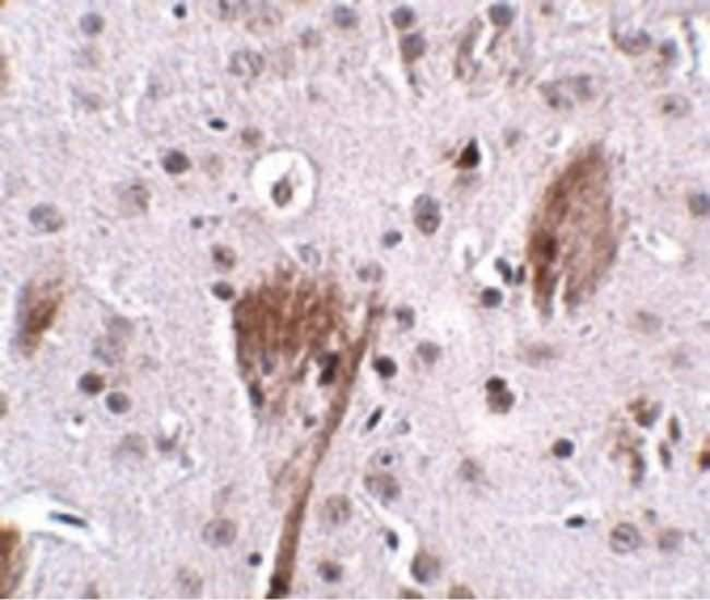 SPG11 Rabbit anti-Human, Mouse, Rat, Polyclonal, Invitrogen 100 µg;