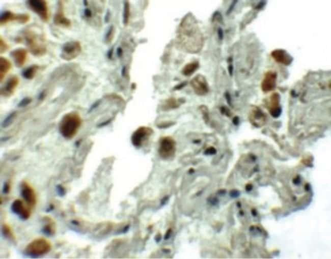 SPTLC1 Rabbit anti-Human, Polyclonal, Invitrogen 100 µg; Unconjugated