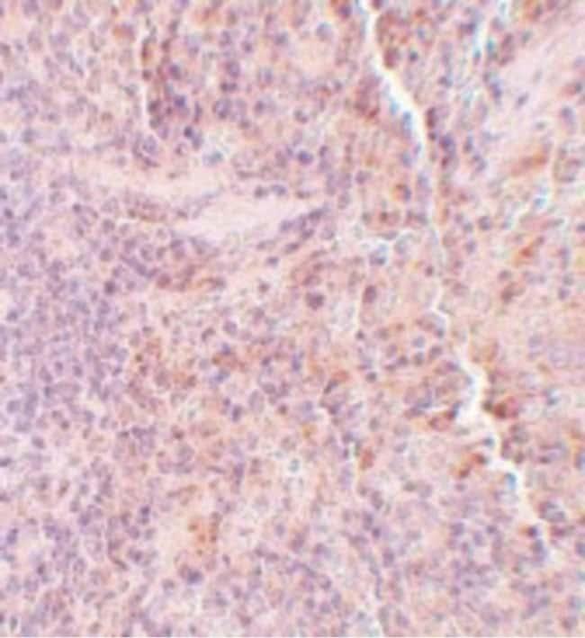 SQSTM1 Rabbit anti-Human, Mouse, Rat, Polyclonal, Invitrogen 100 µg;