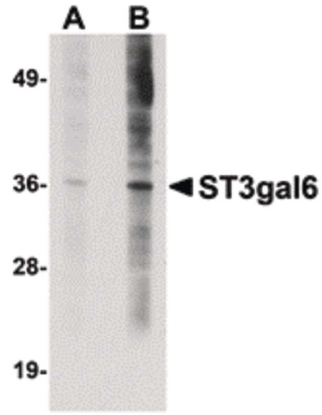ST3GAL6 Rabbit anti-Human, Mouse, Rat, Polyclonal, Invitrogen 100 µg;