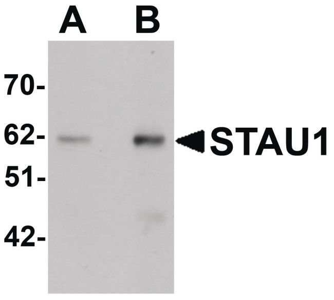 Staufen Rabbit anti-Human, Mouse, Rat, Polyclonal, Invitrogen 100 µg;
