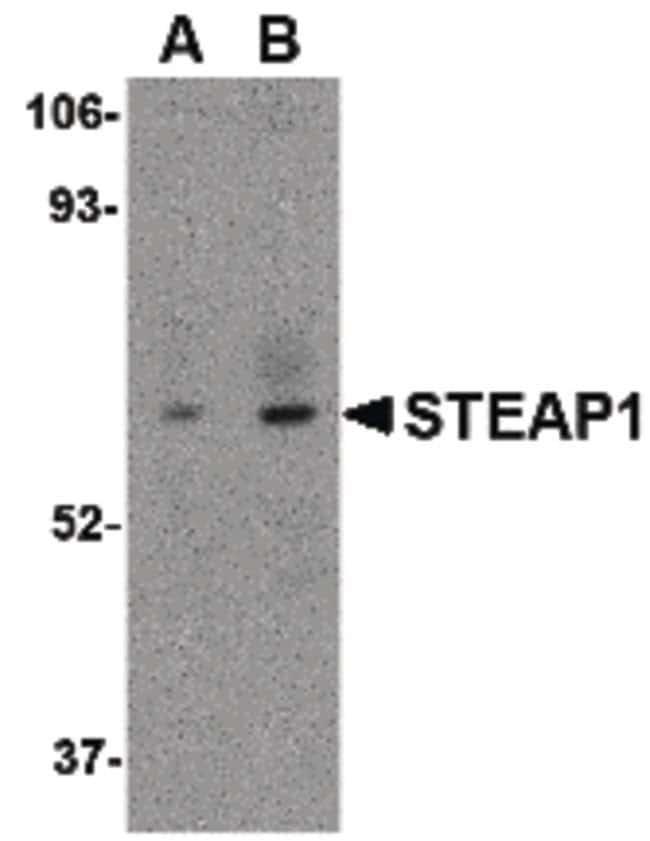 STEAP1 Rabbit anti-Human, Mouse, Rat, Polyclonal, Invitrogen 100 µg;
