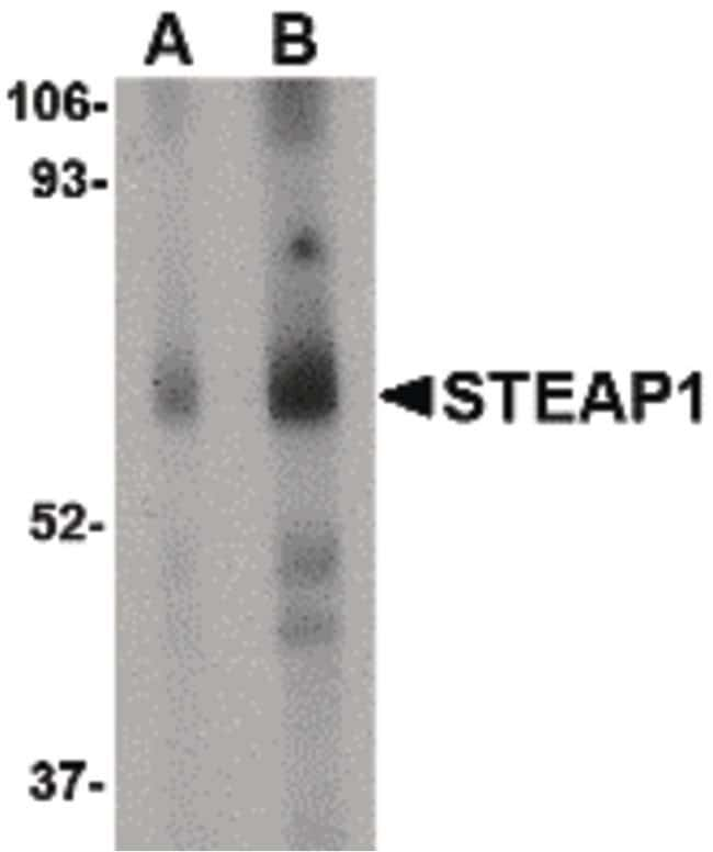 STEAP1 Rabbit anti-Human, Mouse, Rat, Polyclonal, Invitrogen 100 µg;