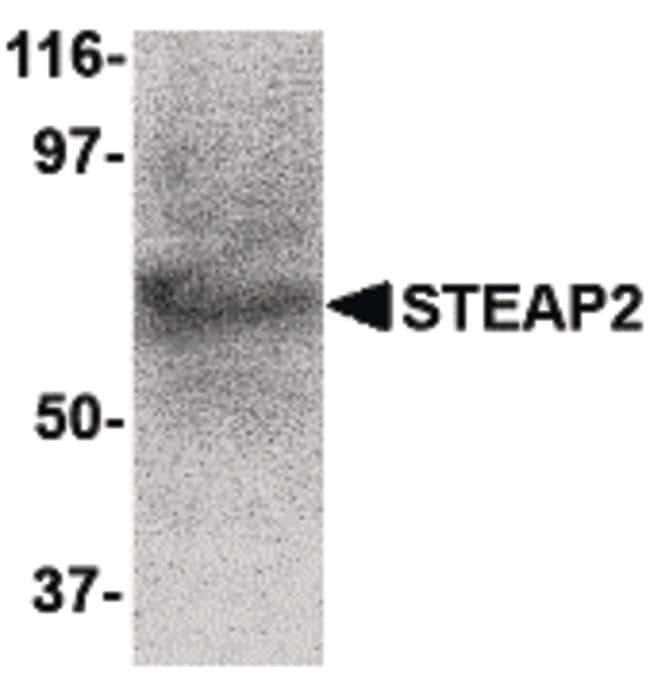 STEAP2 Rabbit anti-Human, Mouse, Polyclonal, Invitrogen 100 µg; Unconjugated