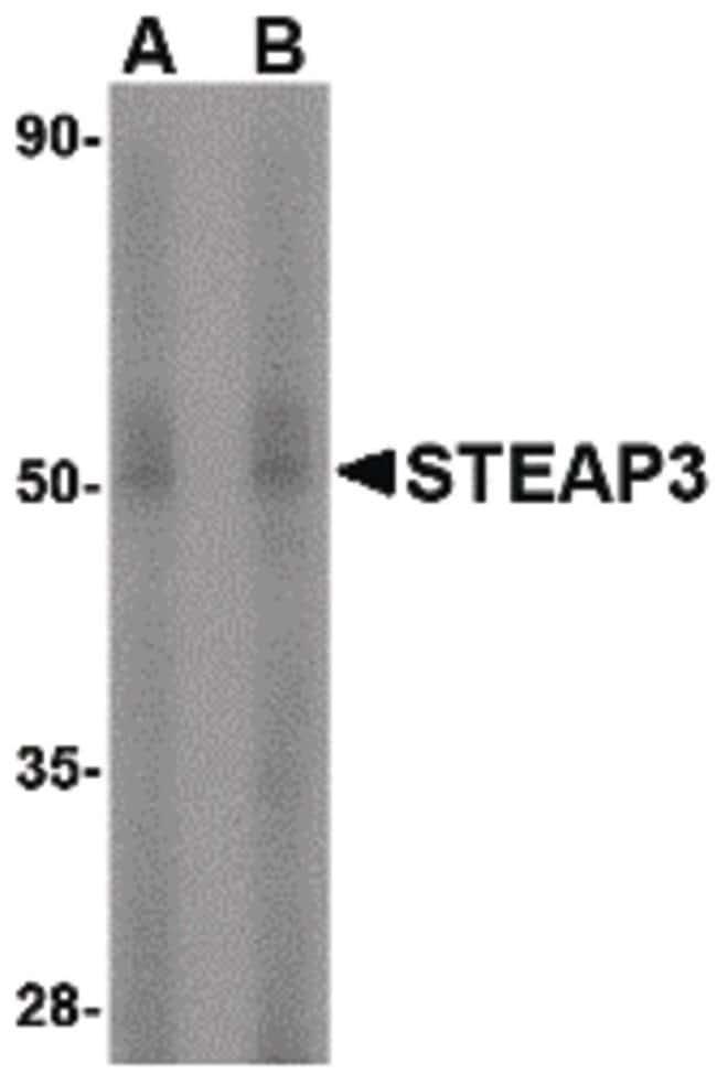 STEAP3 Rabbit anti-Human, Mouse, Rat, Polyclonal, Invitrogen 100 µg;