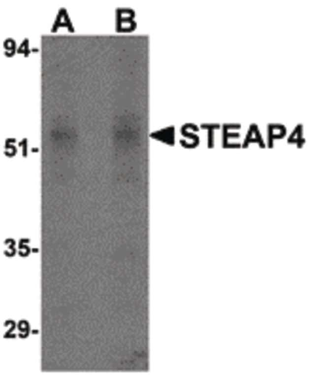 STEAP4 Rabbit anti-Human, Mouse, Rat, Polyclonal, Invitrogen 100 µg;