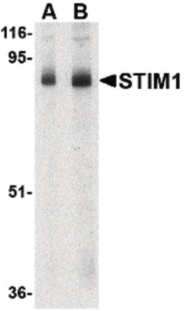 STIM1 Rabbit anti-Human, Mouse, Rat, Polyclonal, Invitrogen 100 µg;