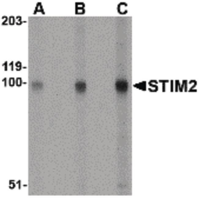 STIM2 Rabbit anti-Human, Mouse, Rat, Polyclonal, Invitrogen 100 µg;