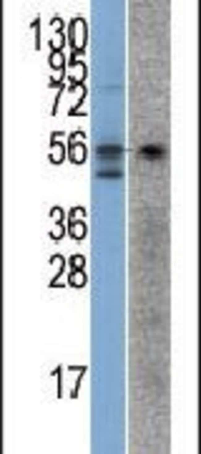 STK38 Rabbit anti-Human, Polyclonal, Invitrogen 400 µL; Unconjugated