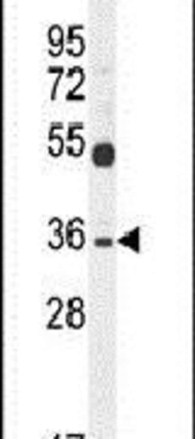 SULT1C3 Rabbit anti-Human, Polyclonal, Invitrogen 400 µL; Unconjugated