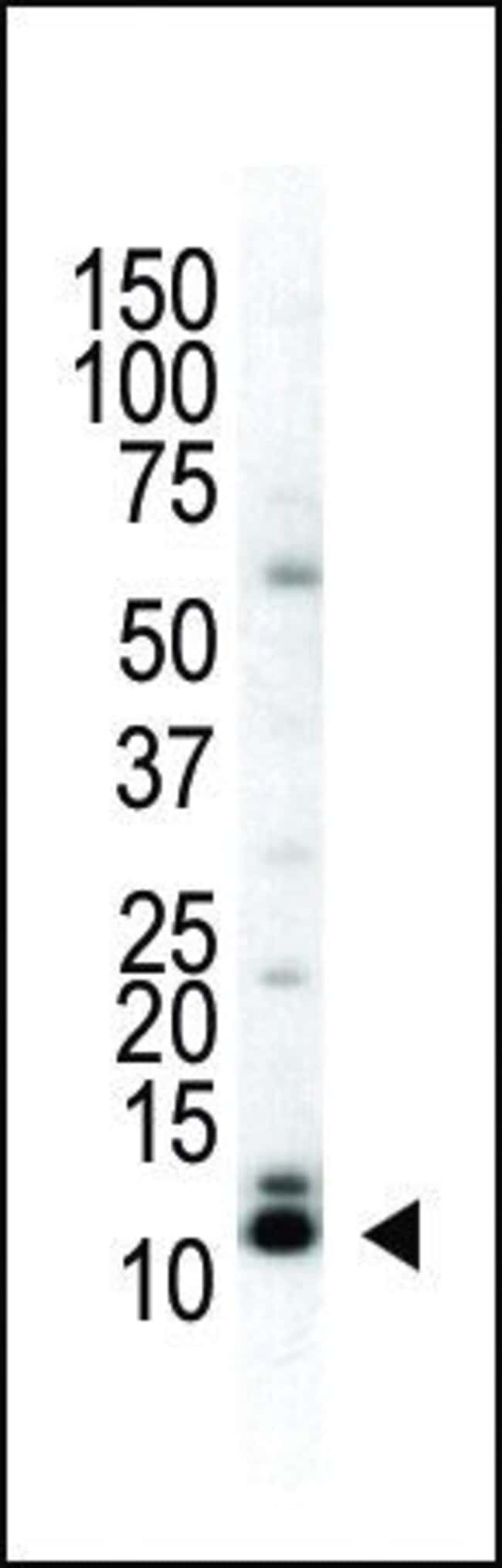 SUMO2/SUMO3 Rabbit anti-Human, Mouse, Polyclonal, Invitrogen 400 µL;