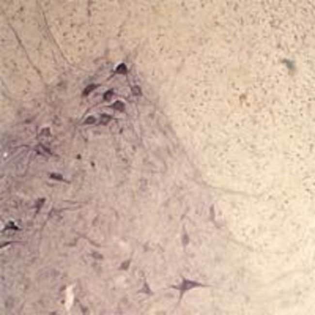 Synaptotagmin 2 Rabbit anti-Human, Mouse, Rat, Polyclonal, Invitrogen 100