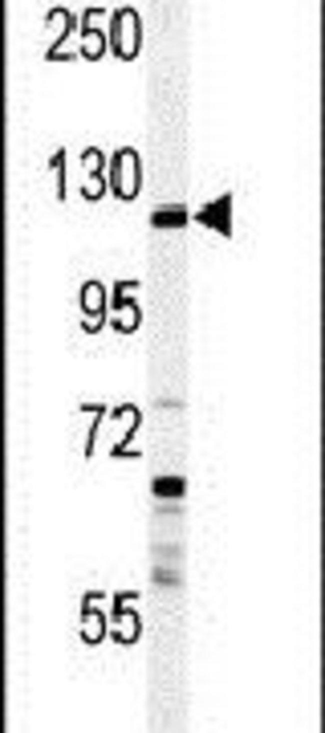SYTL2 Rabbit anti-Human, Polyclonal, Invitrogen 400 µL; Unconjugated
