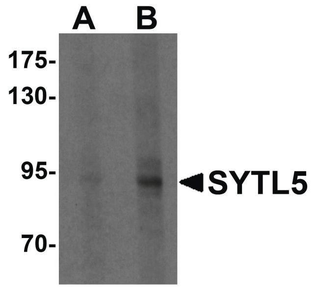 SYTL5 Rabbit anti-Human, Mouse, Rat, Polyclonal, Invitrogen 100 µg;
