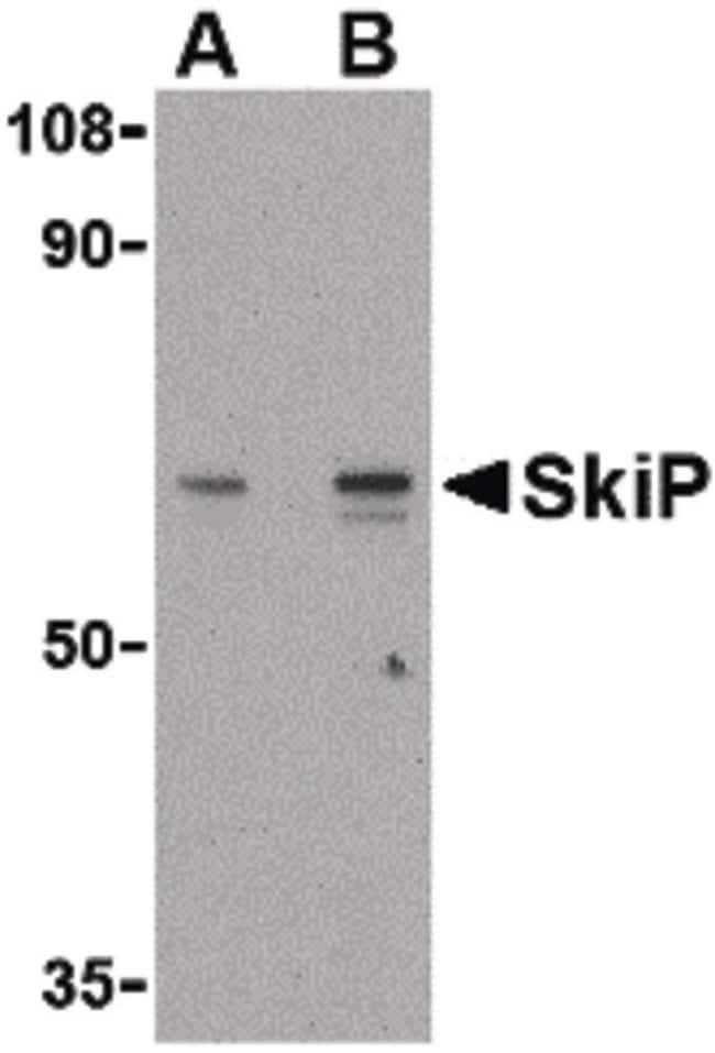 SNW1 Rabbit anti-Human, Mouse, Rat, Polyclonal, Invitrogen 100 µg;