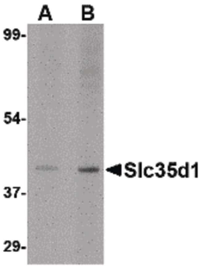 SLC35D1 Rabbit anti-Human, Mouse, Rat, Polyclonal, Invitrogen 100 µg;
