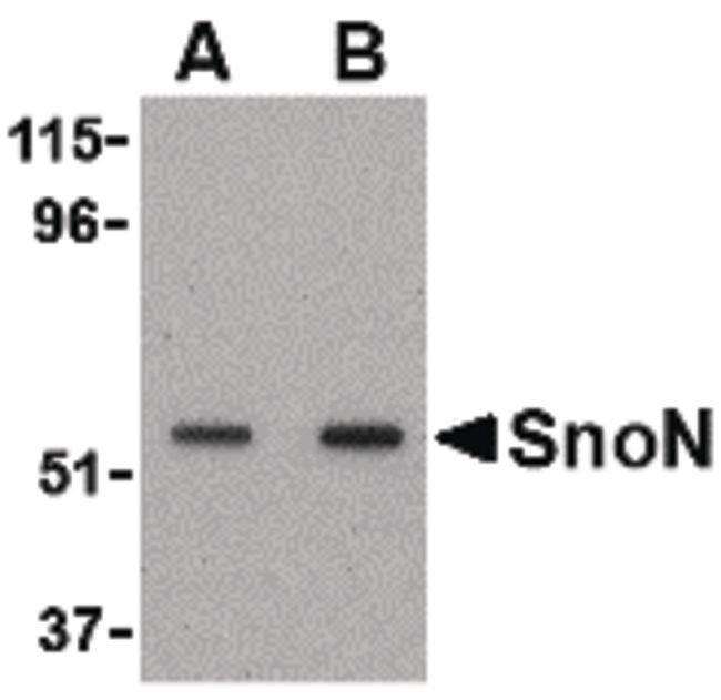 SnoN Rabbit anti-Human, Mouse, Rat, Polyclonal, Invitrogen 100 µg;