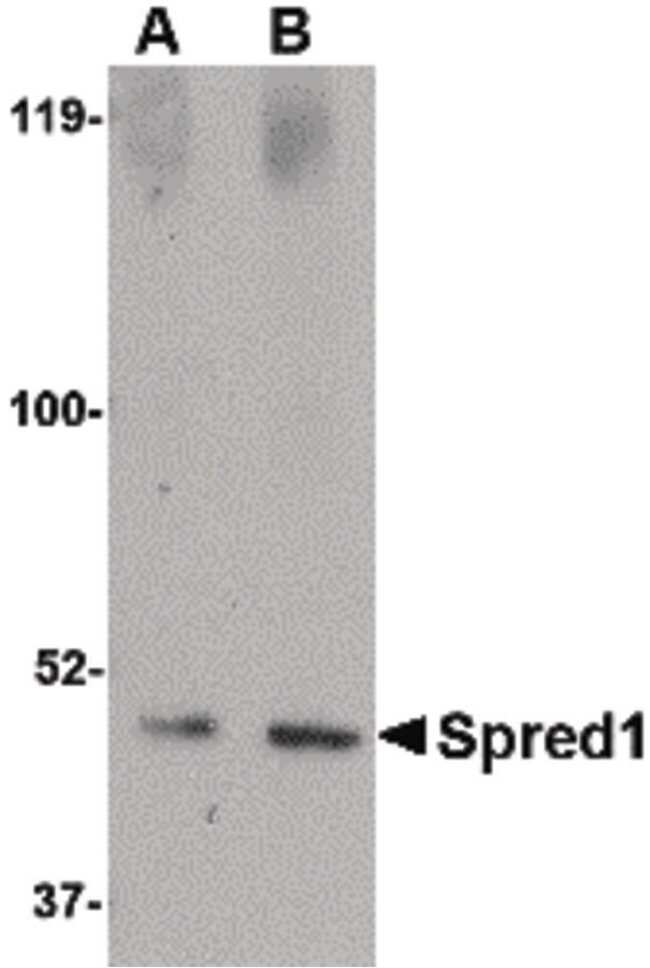 SPRED1 Rabbit anti-Human, Mouse, Rat, Polyclonal, Invitrogen 100 µg;