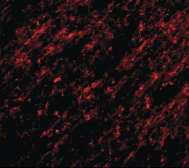 STK39 Rabbit anti-Human, Mouse, Polyclonal, Invitrogen 100 µg; Unconjugated