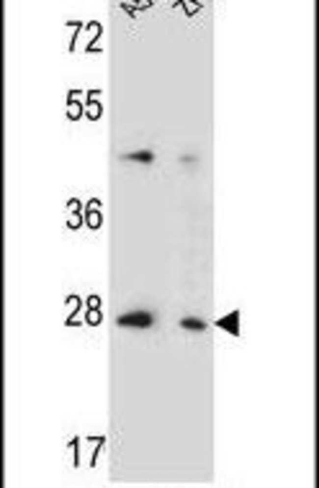 TM4SF4 Rabbit anti-Human, Mouse, Polyclonal, Invitrogen 400 µL; Unconjugated