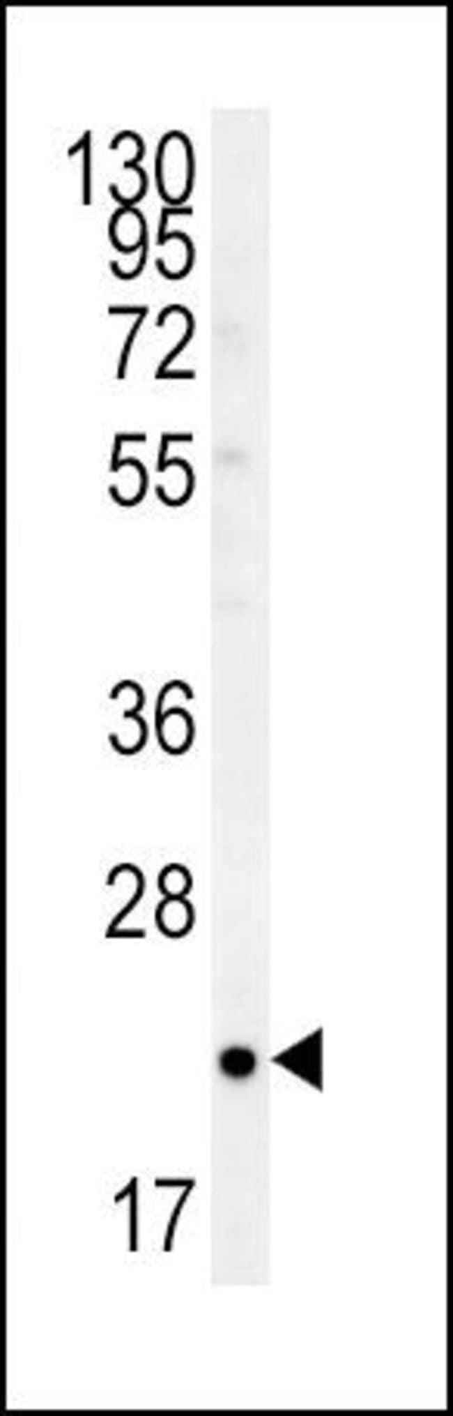 TC10 Rabbit anti-Human, Polyclonal, Invitrogen 400 µL; Unconjugated