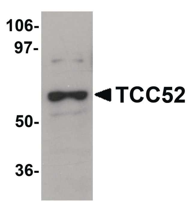TCC52 Chicken anti-Human, Mouse, Rat, Polyclonal, Invitrogen 100 µg;