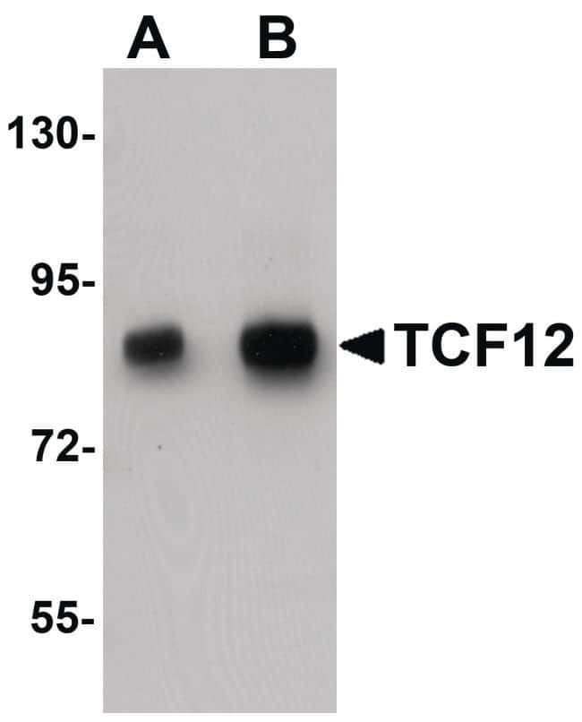 TCF12 Rabbit anti-Human, Mouse, Rat, Polyclonal, Invitrogen 100 µg;