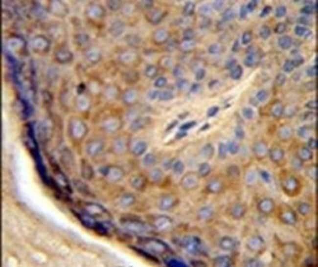 TCHP Rabbit anti-Human, Polyclonal, Invitrogen 400 µL; Unconjugated